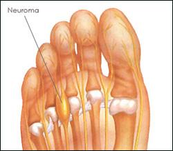 Neuroma